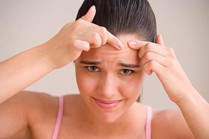 Как почистить кожу от угрей и не навредить себе