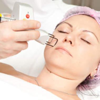 Метод лазерной шлифовки кожи